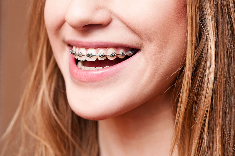 Orthodontics - Eton Dental, Canoga Park Dentist