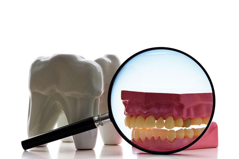 Root Canal - Eton Dental, Canoga Park Dentist