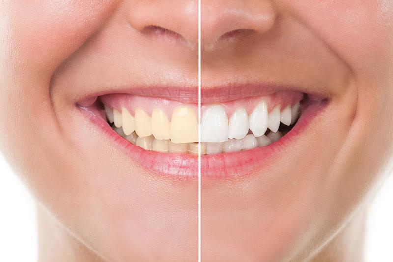 Zoom! Teeth Whitening - Eton Dental, Canoga Park Dentist